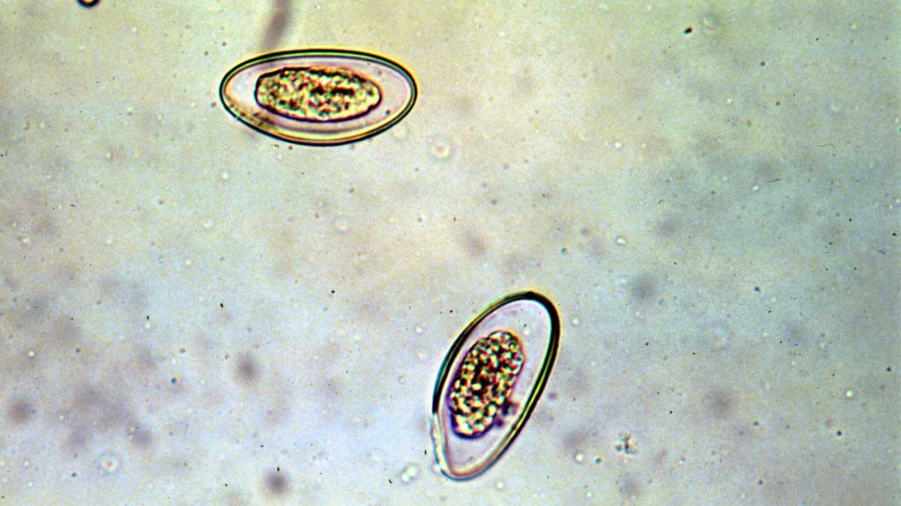 pinwormok helye a pinwormok gyógyszerének neve