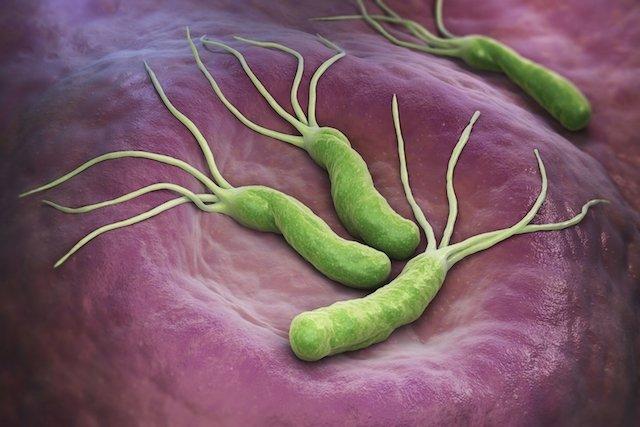 Helicobacter paraziták
