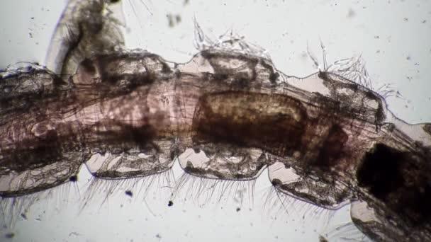 tardigrád parazita amikor a pinwormok kimásznak