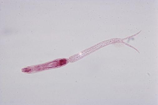 rossz leheletű nyelőcső sérv miért jelennek meg a pinwormok