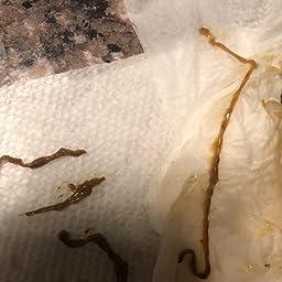 Pinworms fejlesztése - A betegség megjelenése és terjedése