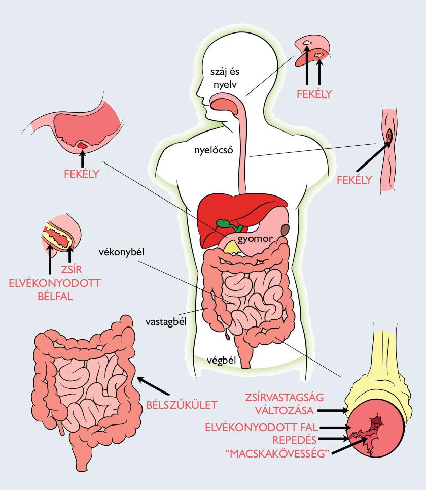 Crohn- kór paraziták
