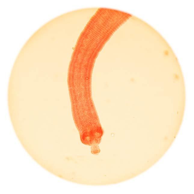 paraziták emberben tünetek áttekintése orsóféreg és pinworm kezelése