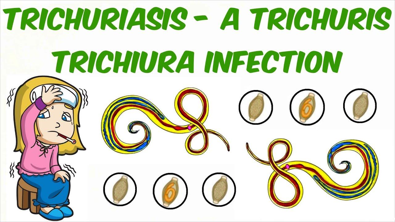 A székletben, Trichocephalosis fertőző betegségek