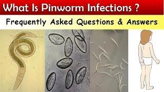 orsóféreg és pinworm kezelése egyszerű paraziták