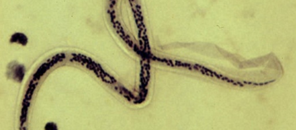 parazita igazgató miért fekete a pinworm
