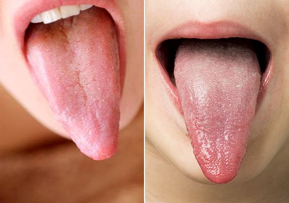 lepedék a nyelven és a rossz lehelet