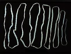 Galandféreg-fertőzés útvonalai emberekben