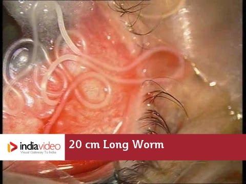 anyajegyek a paraziták jele a testben