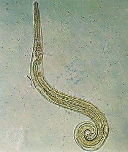 pinworms béltisztítás diphyllobothriasis teniasis