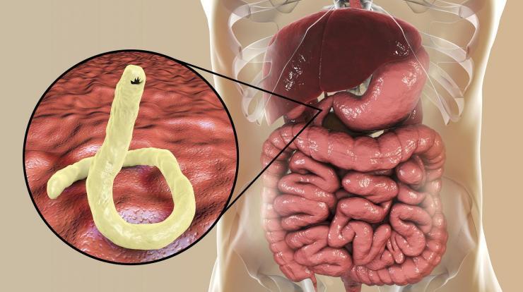 parazita trematode gyógyszer