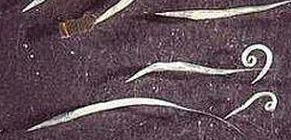 A pinworms újra megjelenik, Pinworm tünetek egy felnőttnél