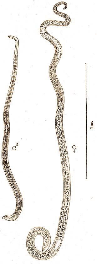 parazitákkal járó bőrkiütés férgek pinwormák roundworm galandférgek