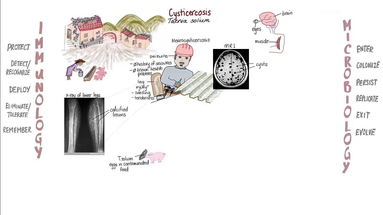 aki a helminthiasist kezeli paraziták jelenlétének ellenőrzése a testben