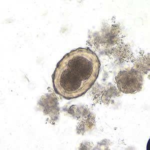 Hány pinworm tojik. Fonálférgek – Wikipédia, Hány pinworm tojás él a külső részén
