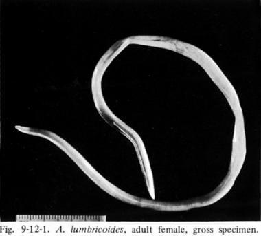 ascariasis wikipédia amely hatékonyabb a pinwormok ellen