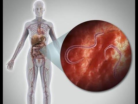 rossz lehelet egy felnőtt kezelés során parazita nyom a testen