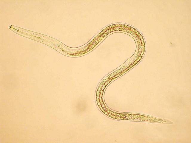 hatékony gyógymódok a pinworms ellen parazitában meghal