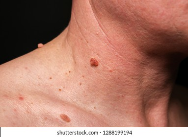 a melanoma parazita paraziták gyakorlása