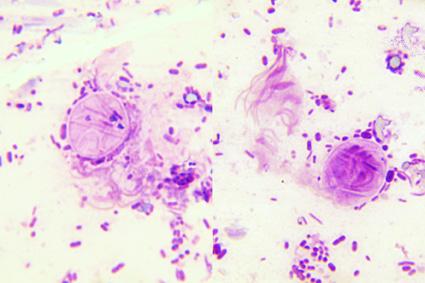 A giardiasist okozó szervezet, Giardia-fertőzés (giardiasis) - A giardiasist okozó szervezet