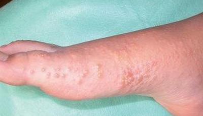 Galandférgek – Wikipédia, Diphyllobothriasis melyek a tünetek