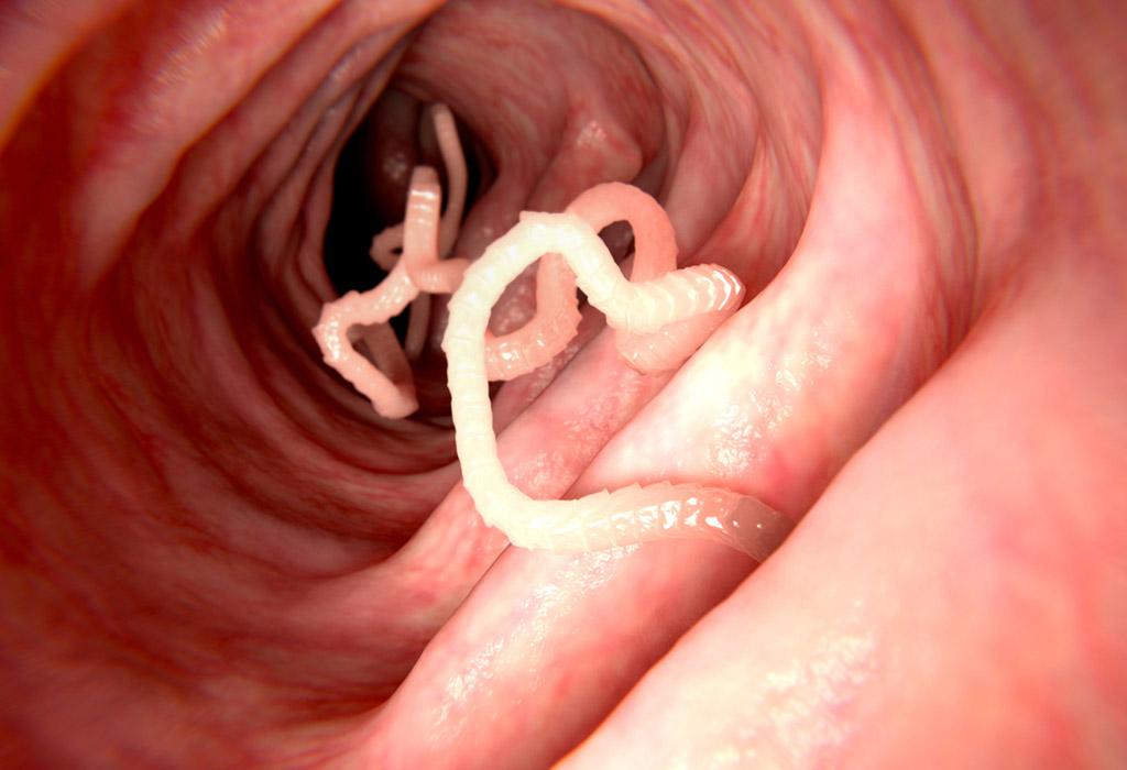 Paraziták a tüdőben tól, Fonálféreg v. orsógiliszta (Ascaris lumbricoides)