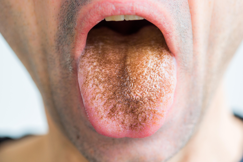 mit tegyünk, ha rothadt szaga van a szájnak