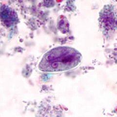 tojás giardiasis