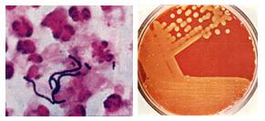 A Streptococcusok okozta fertőzések