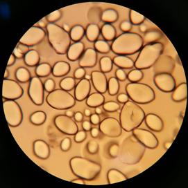 Pinworms vízben, Megtisztítja a méreganyagok és paraziták testét Vlagyivosztokban
