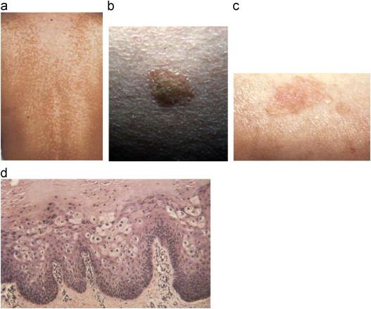 a melanoma parazita)
