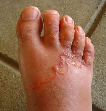 Emberre is veszélyes az agresszív parazita: jelek, hogy megfertőzte a háziállatot - Terasz   Femina