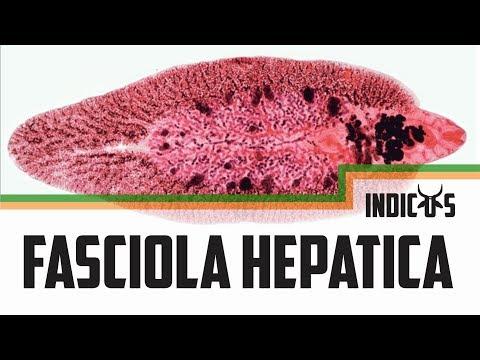 a fascioliasis megelőzése stroganina paraziták