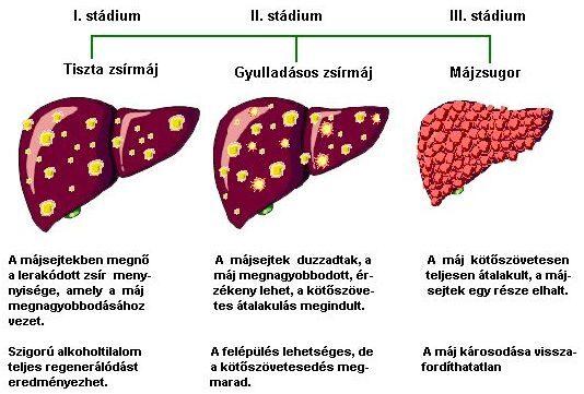 minden gyógyszer a helminták ellen hogyan lehet megtalálni a parazitákat a húsban