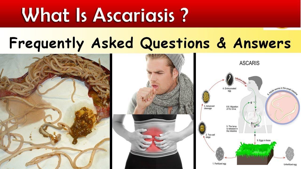 Ascaris megjelenés. Profilaktikus szerek a szervezet parazitái ellen