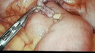 Pinworm gyertyák kezelésre. Pinworm drog