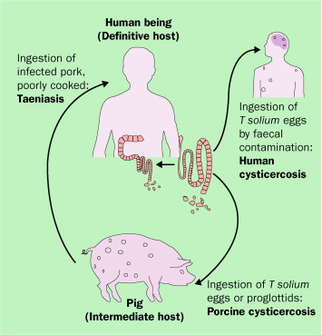 cysticercosis paraziták